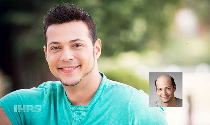 mens non-surgical hair restoration jacksonville florida