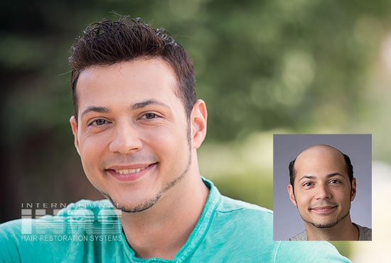 Men S Non Surgical Hair Replacement Results Ihrs
