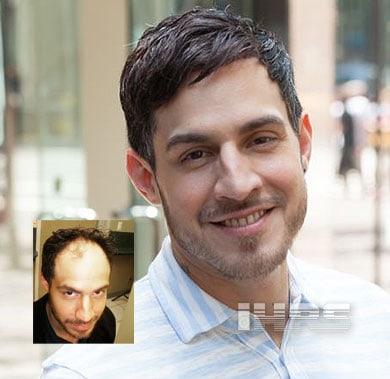 Men's Hair Loss Restoration Jacksonville FL
