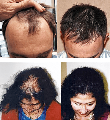 Neograft Hair Transplants - Medical Hair Restoration - Jacksonville FL
