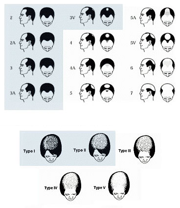 Norwood Ludwig Hair Loss Scale