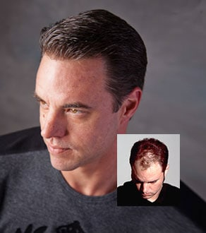 Virtual Reality hair replacement systems men Jacksonville FL