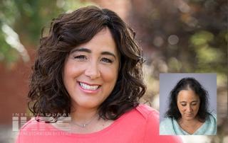 Women's Hair Replacement - Jacksonville, FL