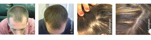 Laser hair loss threatment results Jacksonville
