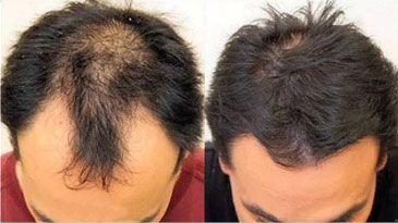 Jacksonville FUE Hair Transplants