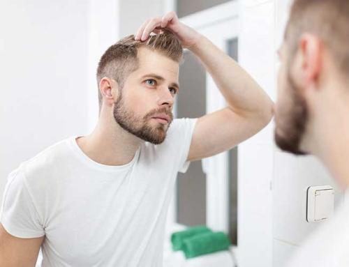 Are Millennial Men Losing Their Hair