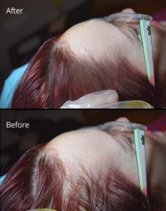 Female Scalp Micropigmentation - Jacksonville, Florida