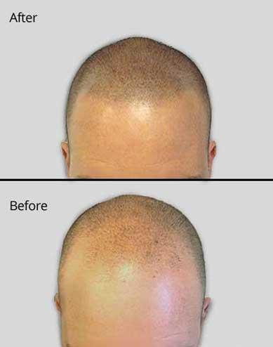 Scalp Micropigmentation for thinning hair - Jacksonville, FL