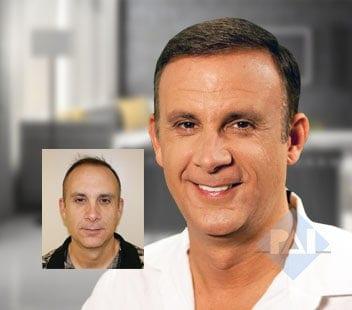 Corrective Hair Restoration