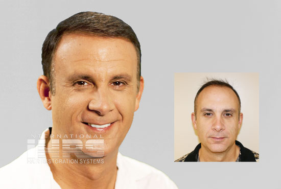 PAI Advanced Hair Transplant Restoration Jacksonville
