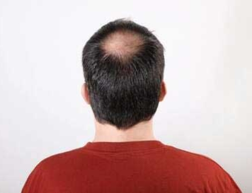 Enhanced Plasma Therapy for Hair Loss: Does It Work?