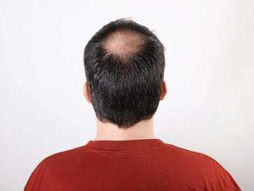 hair loss treatment therapy jacksonville fl