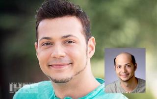 Hair Restoration Jacksonville, Florida