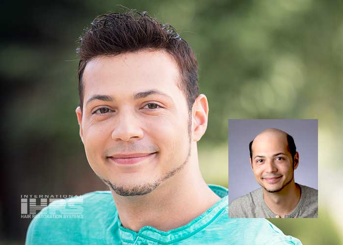 Hair Restoration Jacksonville, Florida