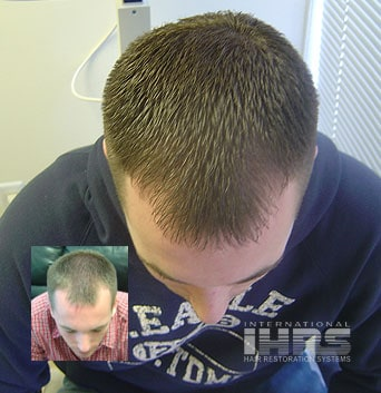 Laser Hair Therapy Treatment for Hair Loss Jacksonville FL