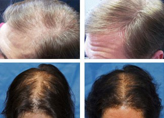laser hair loss treatment rejuvenation jacksonville