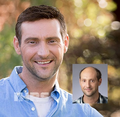 Non-Surgical hair loss FAQ. Hair Loss Specialists Jacksonville florida