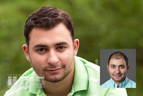 Men's Hair Replacement - Jacksonville, FL