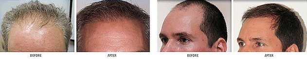 Neograft FUE Hair Transplants Jacksonville Clinic