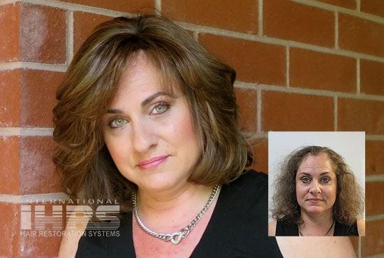 Women's Hair Replacement Jacksonville, FL