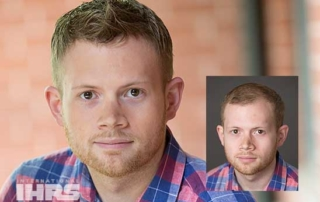 Male Hair Loss Solutions - Florida