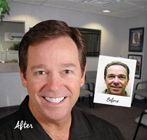 best jacksonville hair transplant doctor