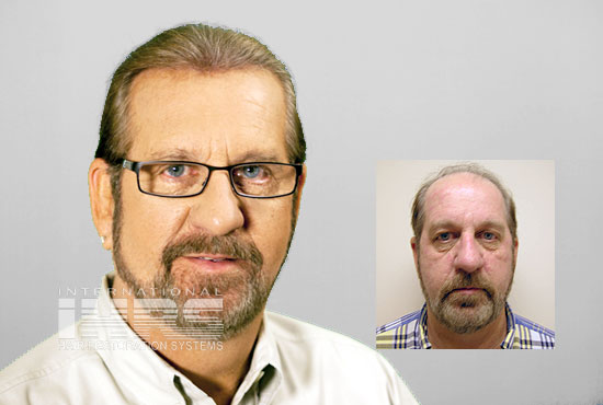 PAI Jacksonville most natural hair restoration transplants