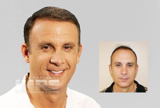 PAI Advanced Hair Transplant Restoration Jacksonville