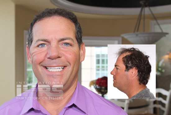 PAI Medical Permanent Hair Transplants Jacksonville FL