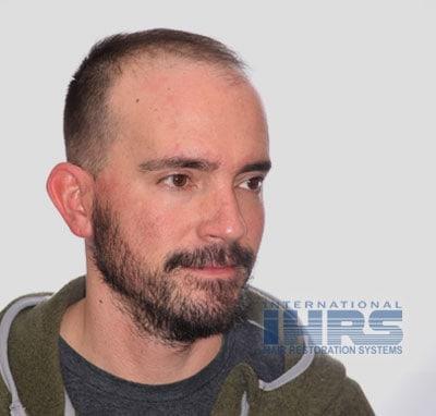 hair restoration surgery jacksonville