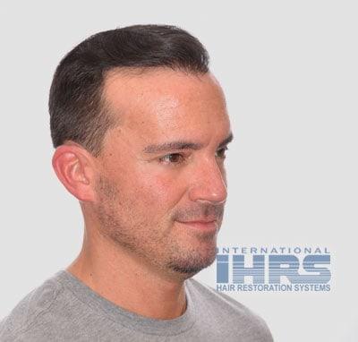 hair restoration surgery jacksonville fl