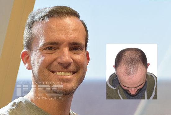 pai multi unit hair transplantation jacksonville fl