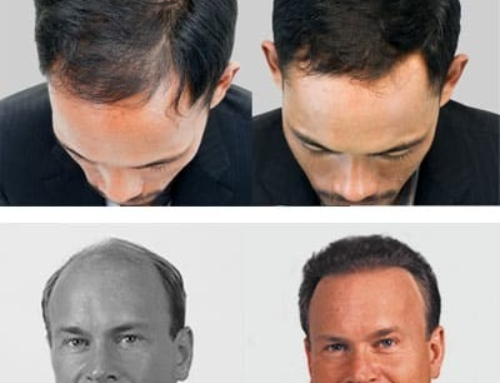 FUE Hair Transplants Explained | IHRS Jacksonville Florida