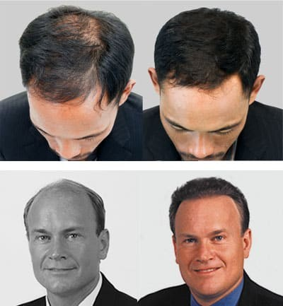 Neograft FUE Hair Transplants Jacksonville FL