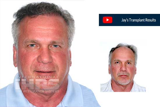 PAI Medical Hair Restoration - Jacksonville Hair Transplant Doctor