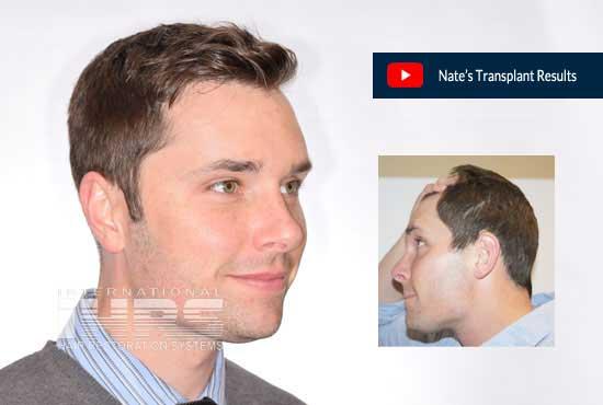 Nates Hair Transplant Results PAI Medical Hair Restoration Jacksonville FL