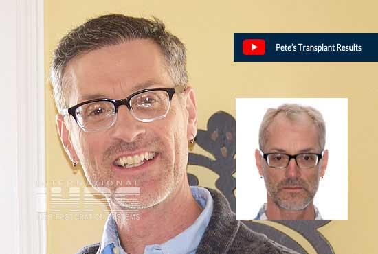 Petes Hair Transplant Results IHRS PAI Medical Hair Restoration
