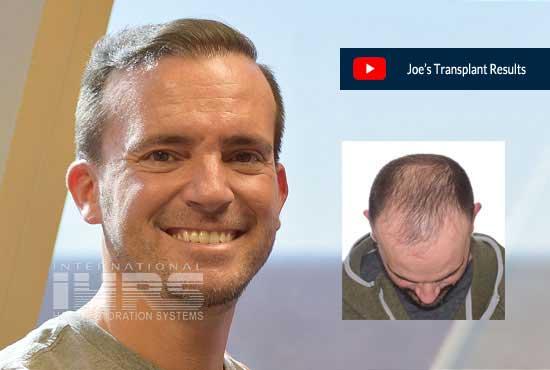 PAI Permanent Hair Transplants Jacksonville Florida - Joe